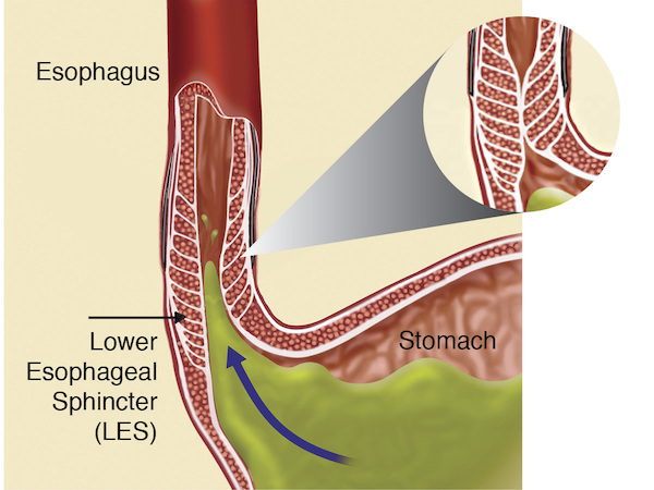 gastroesophageal reflux disease gerd Gastroesophageal reflux disease (gerd), also known as acid reflux, is a long-term condition where stomach contents come back up into the esophagus resulting in either.