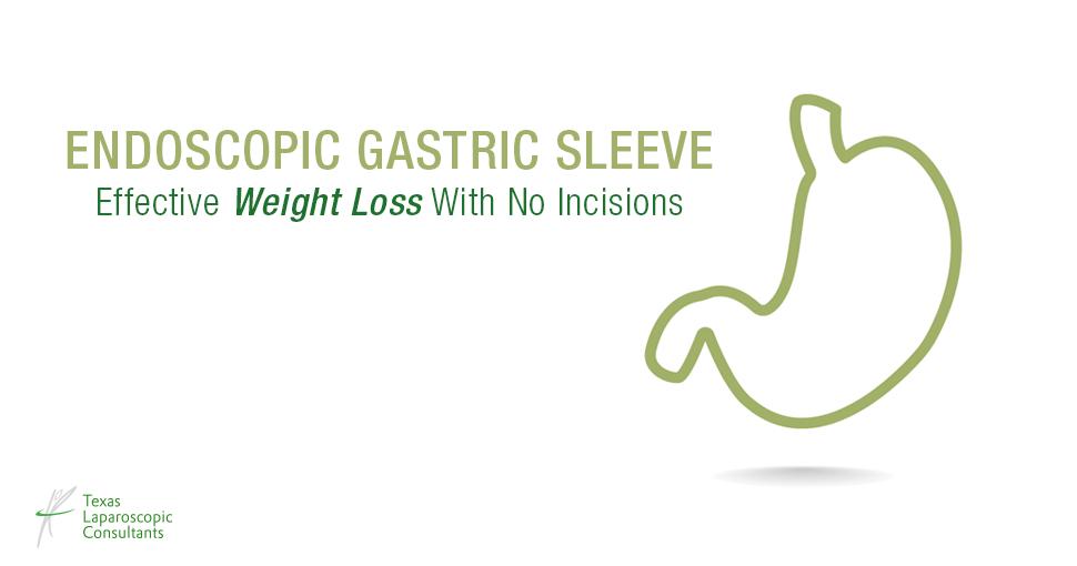 tlc_surgery_endoscopic_gastric_sleeve_fb-1