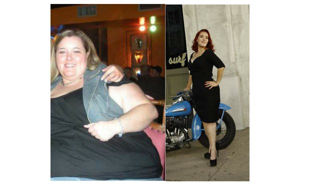 Brandi_TLC_Surgery_Patient_Success_Story
