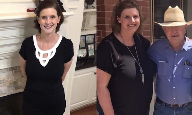 TLC Surgery WLS Success Story Kristi