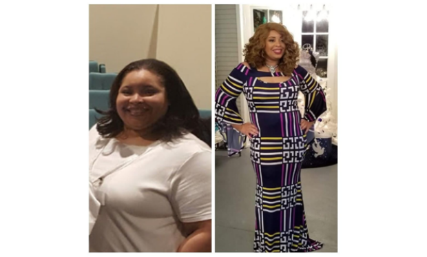 TLC_Surgery_Houston_Patient_Transformation