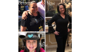 TLC-Surgery-Patient-Success-Story-Teresa